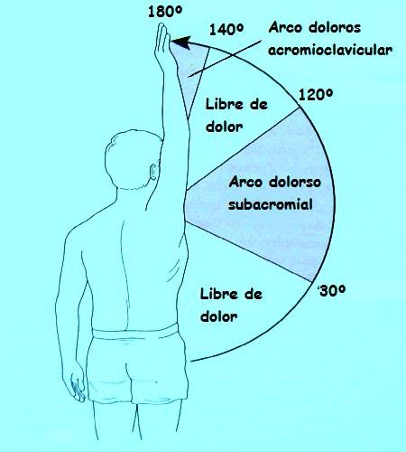 Resultado de imagen de prueba arco doloroso hombro