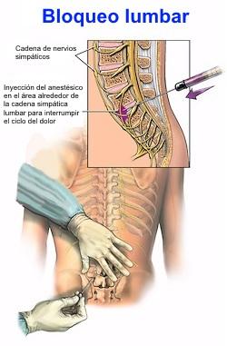 Los dolores vivos en los riñones el tratamiento