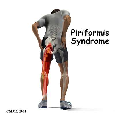 Piramidal on self diagnose knee pain